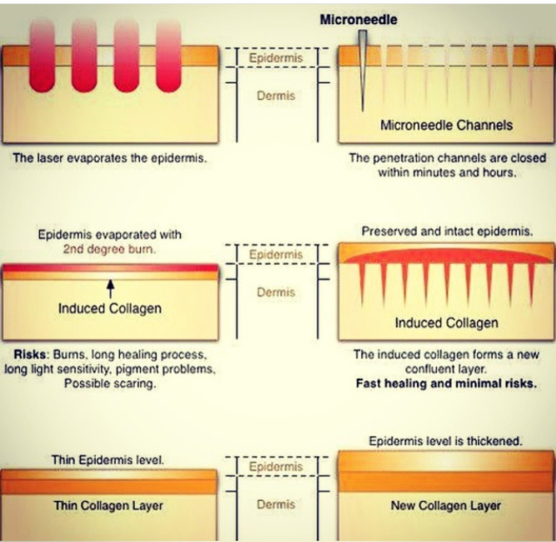 Dermapen Skin-Needling Vs Fractional Laser Resurfacing