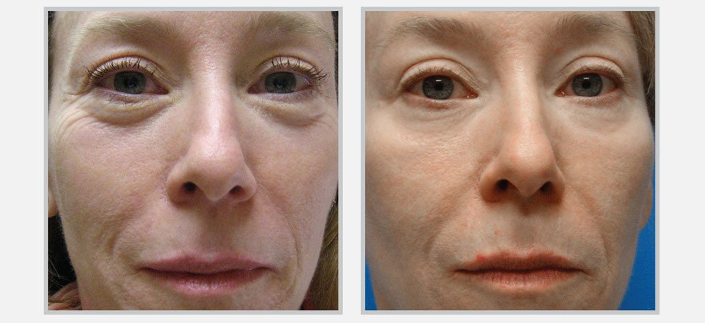 Skin Tightening - SkinGlow Skin Care Clinic Vancouver Before/After